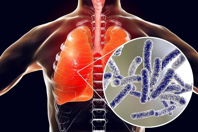 L'uomo può contrarre la legionella tramite inalazione e, quando il batterio entra in contatto con i polmoni, può insorgere l'infezione.